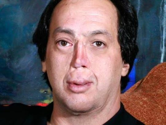 Howard Shulman lost much of his face at 3 days old due to a bacterial infection.