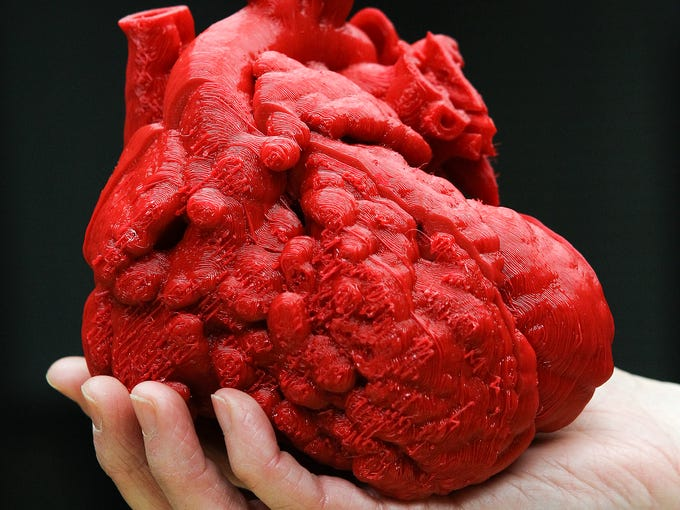 A 3D model of the heart of Roland Lian Cung Bawi, 14 mos.  Engineers at UofL's Speed School created the model in three sections to help doctors at Kosair repair the heart. February 21, 2014