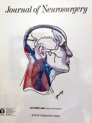 Dr. Alvernia's illustration.