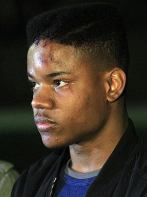 Martese Johnson, 20, of Chicago was on hand as fellow University of Virginia students protested on his behalf March, 18, 2015, in Charlottesville, Va.