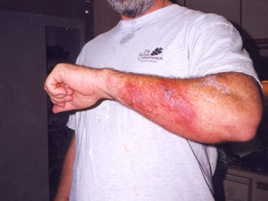 Don't go into the water if allergic to blue-green algae. Here is rash caused by contaminated spring water. Algae can also cause respiratory problems.