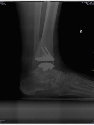 Marilyn Utz's ankle after replacement surgery.