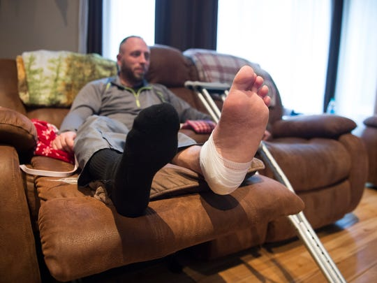 Ricky Stonebraker continues to recover in his South Middeton Township home after a hunting accident in October. Stonebraker broke his left heel bone after falling 20 feet from a tree stand.