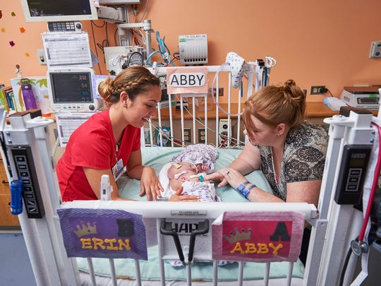 In this September 2016 photo provided by the Children's Hospital of Philadelphia, Heather Delaney, right, and registered nurse Megan Hedges care for Delaney's conjoined twin daughters Abby, center top, and Erin at the Children's Hospital of Philadelphia in Philadelphia. Hospital officials say surgeons successfully separated the 10-month-old twins June 6, 2017, during an 11-hour surgery. (Ed Cunicelli/Children's Hospital of Philadelphia via AP)
