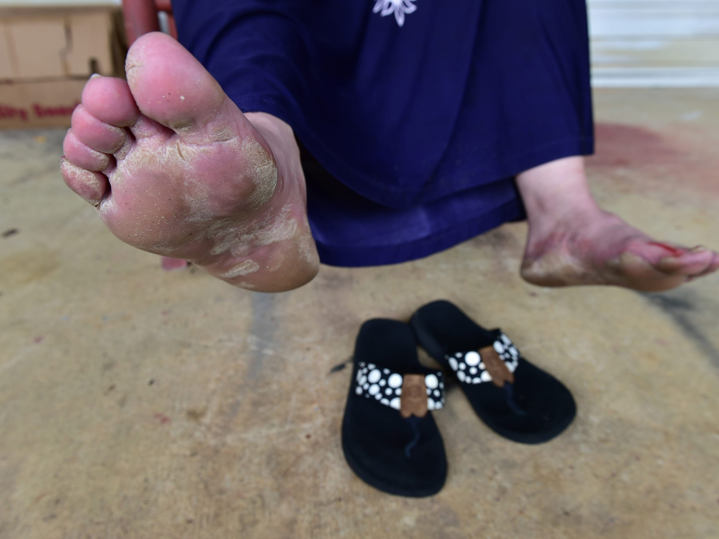 Mary Jean Pettit shows her feet, which suffer the brunt of an undiagnosed illness. Without regular work or disability status, she said she cannot afford to go to see a doctor.