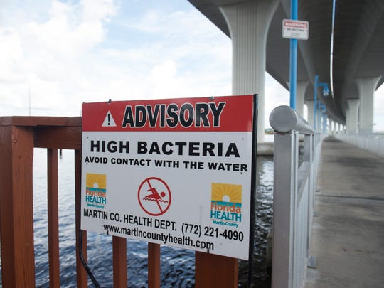 A sign posted by the Martin County Health Department warn people of water filled with high bacteria, which could potentially include toxic blue-green algae, Thursday, June 14, 2018 under the Roosevelt Bridge in downtown Stuart.