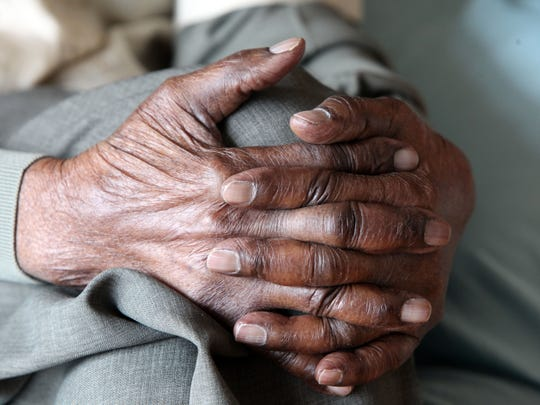 Duranord Veillard's hands are photographed Feb. 26,