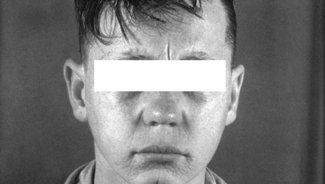 This syphilis patient has rhagades, cracks or fissures in the skin around the mouth.
