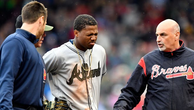 Atlanta Braves outfielder Ronald Acuna Jr. is helped off of the field after injuring his lower leg during the seventh inning Sunday against the Boston Red Sox.