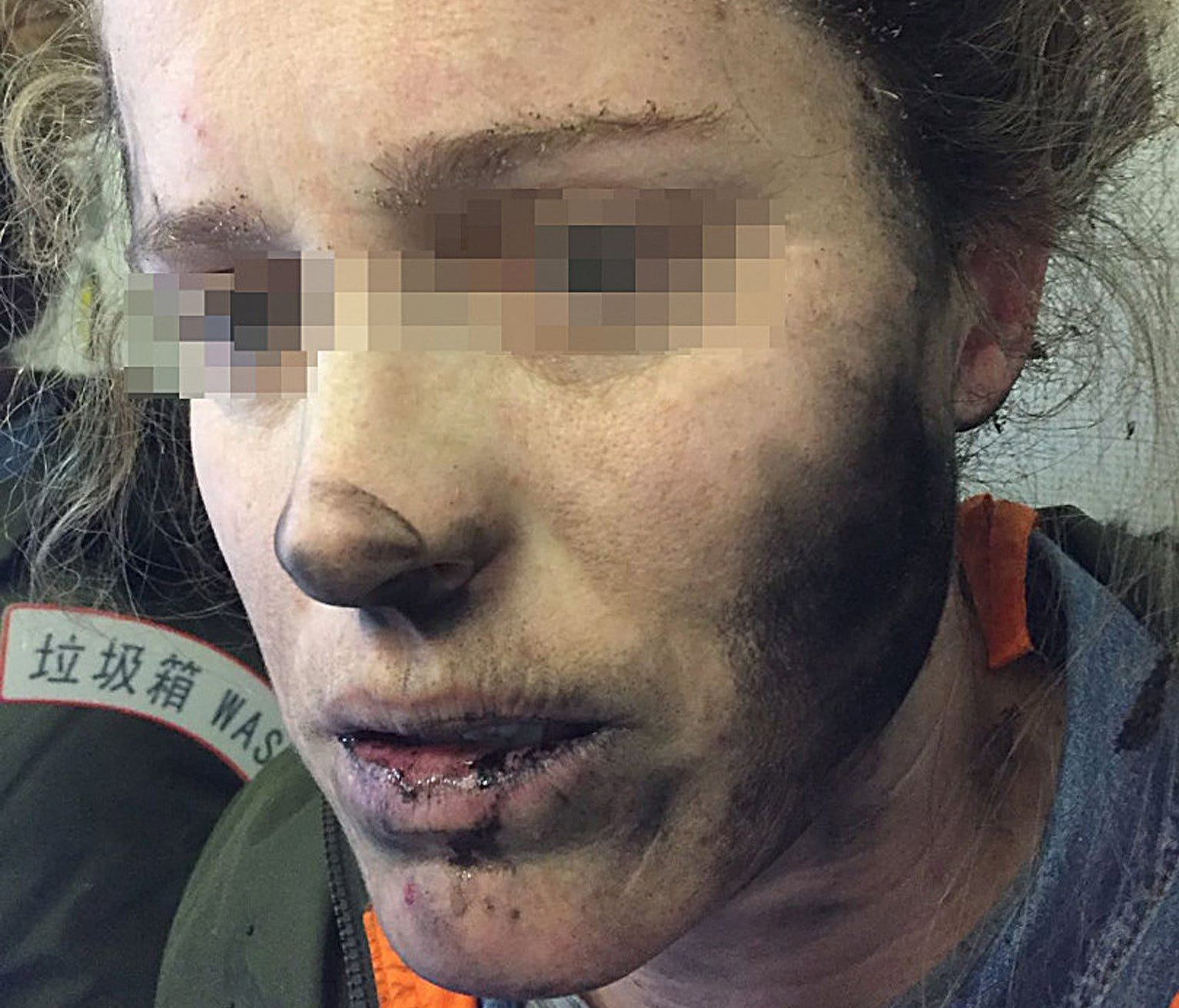 An undated handout photo made available by the Australian Transport Safety Bureau (ATSB) on March 15, 2017, shows a woman with facial injuries after the headphones she was wearing exploded.