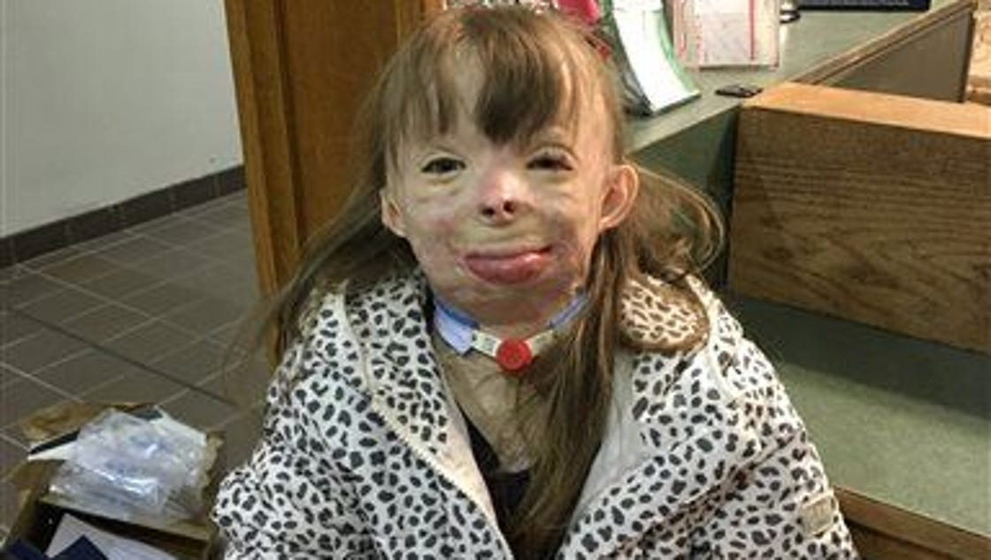 8-year-old Burn Victim Surprised With A Trip To Disney