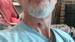 Gary Sweeney said a bullet grazed his neck on Sunday