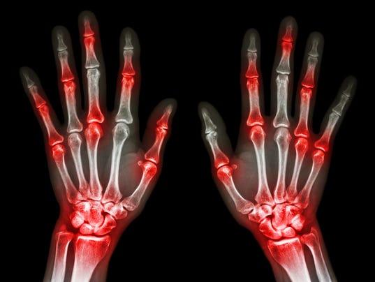 arthritis at multiple joint of hand (Gout,Rheumatoid)