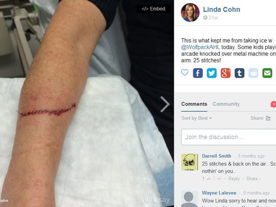 ESPN anchor Linda Cohn posted this picture online after her injury.