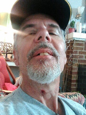 Gary Sweeney said a bullet grazed his neck on Sunday during an incident in Over-the-Rhine.