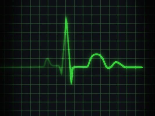 Electrocardiogram of human heartbeat, close-up