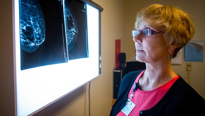 Dr. Liz Reynolds reviews mammographic images at the Memorial Medical HealthPlex. Memorial Medical will be offering 100 free mammograms in October to women 40 and older who do not have insurance.