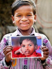 Aboy in Golaghat, a city in India, is shown post-surgery