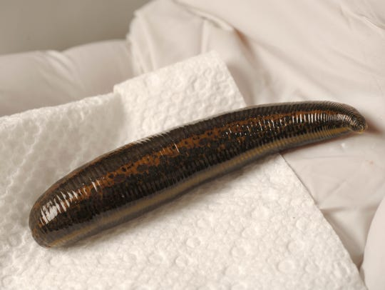 Leeches are prescribed for all sorts of health problems.