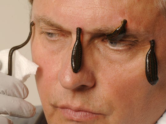 """They're not slimy,"" said Andrew Plucinski, 61, who uses leeches to treat all kinds of ailments. ""They just do miracles."""