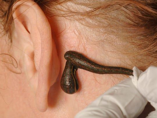 Andrew Plucinski, a hirudologist, or leech practitioner,