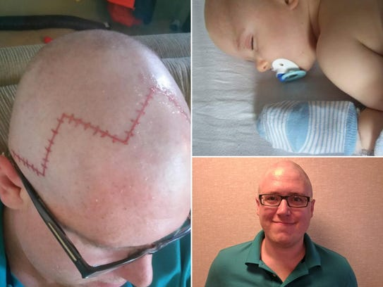 Chippewa falls father tattoos scar on head for son who had for Eau claire tattoo