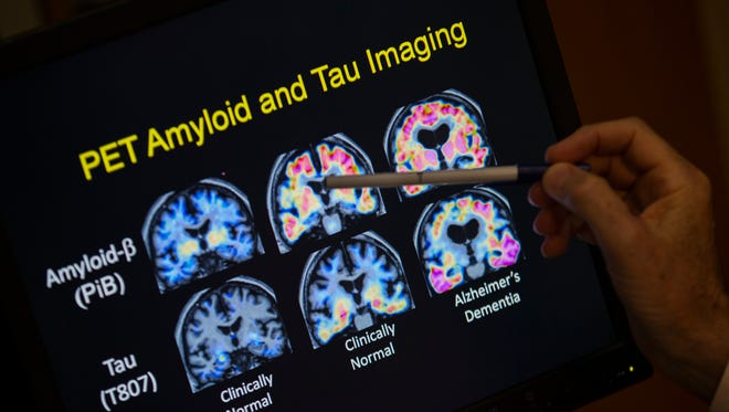 R. Scott Turner, Professor of Neurology and Director of the Memory Disorder Center at Georgetown University Hospital, points to PET scan results that are part of a study on Allheimer's disease at Georgetown University Hospital, on Tuesday, May 19, 2015, in Washington. Amyloid plaques are the Alzheimer's culprit that gets all the attention. Now scientists are beginning to peer into the brains of people considered at high risk of getting Alzheimer's to see if the disease's other bad actor, tangle-forming tau, is lurking well before any memory symptoms begin. (AP Photo/Evan Vucci)