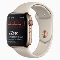 Apple Watch heart monitoring and fall detection: Are they lifesavers?