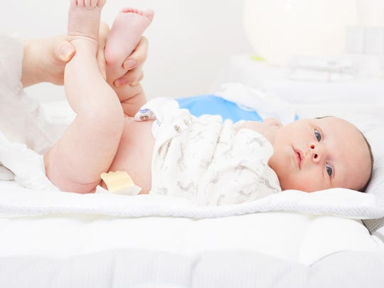 Diaper rash can alarm parents and annoy babies. (Dreamstime)