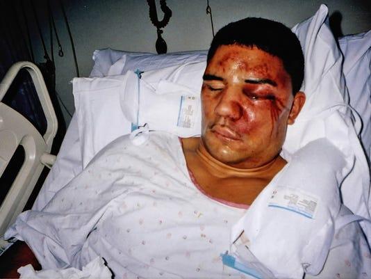 Frank Jude injuries.JPG