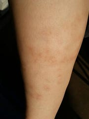 Courtesy photo of skin reactions to the bites from a kissing bug on the leg of Olney resident Jennifer Bankston.