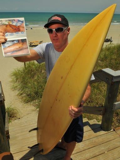 Ralph Sammis of Melbourne Beach talks about getting bitten by a Black-tip shark while surfing in South Melbourne Beach on April 21st 2003, the injury required nearly 100 stitches and three months in rehab .
