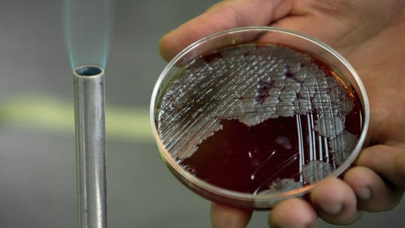 Chemistry student Jorge Rodriguez Martinez holds a sample of billions of anthrax bacteria at the National School of Biological Sciences in Mexico City.