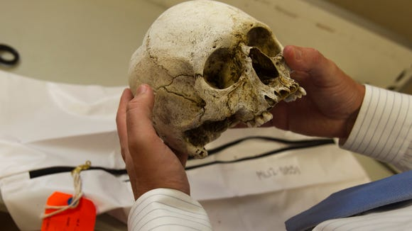 Pima County's Chief Medical Examiner Dr. Gregory Hess examines the skull of an unidentified border crosser.