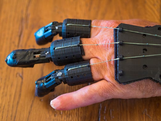 Howard Kamarata lost three fingers in an accident. Kamarata and a friend realized they could use their own expertise to develop an inexpensive but effective alternative to expensive prosthetics. They used a 3-D printer, funding and support from the RecFX Foundation, which supports military dependents.