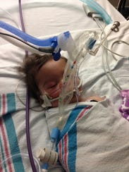 Victoria Landry was born with an omphalocele; a birth