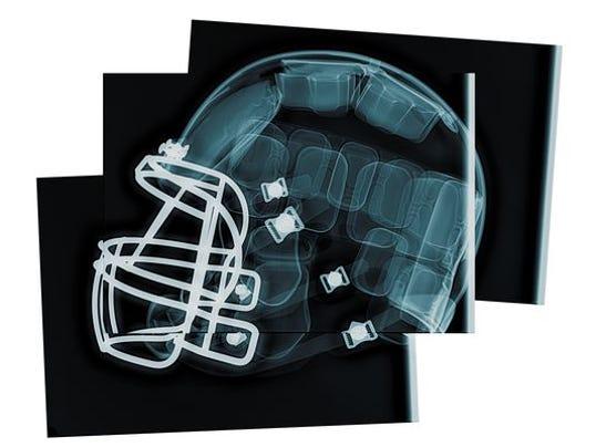 1408481476000-cxx-helmet-15