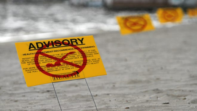 Signs advising swimmers of high bacteria levels wee posted on the beach on the Caloosahatchee at the Cape Coral Yacht Club in a previous closure. Health officials warn about swimming on public beaches until waters are tested post-Hurricane Irma.