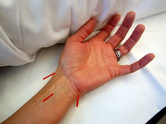 Dr. Eugenio J De Castro demonstrates acupuncture, one