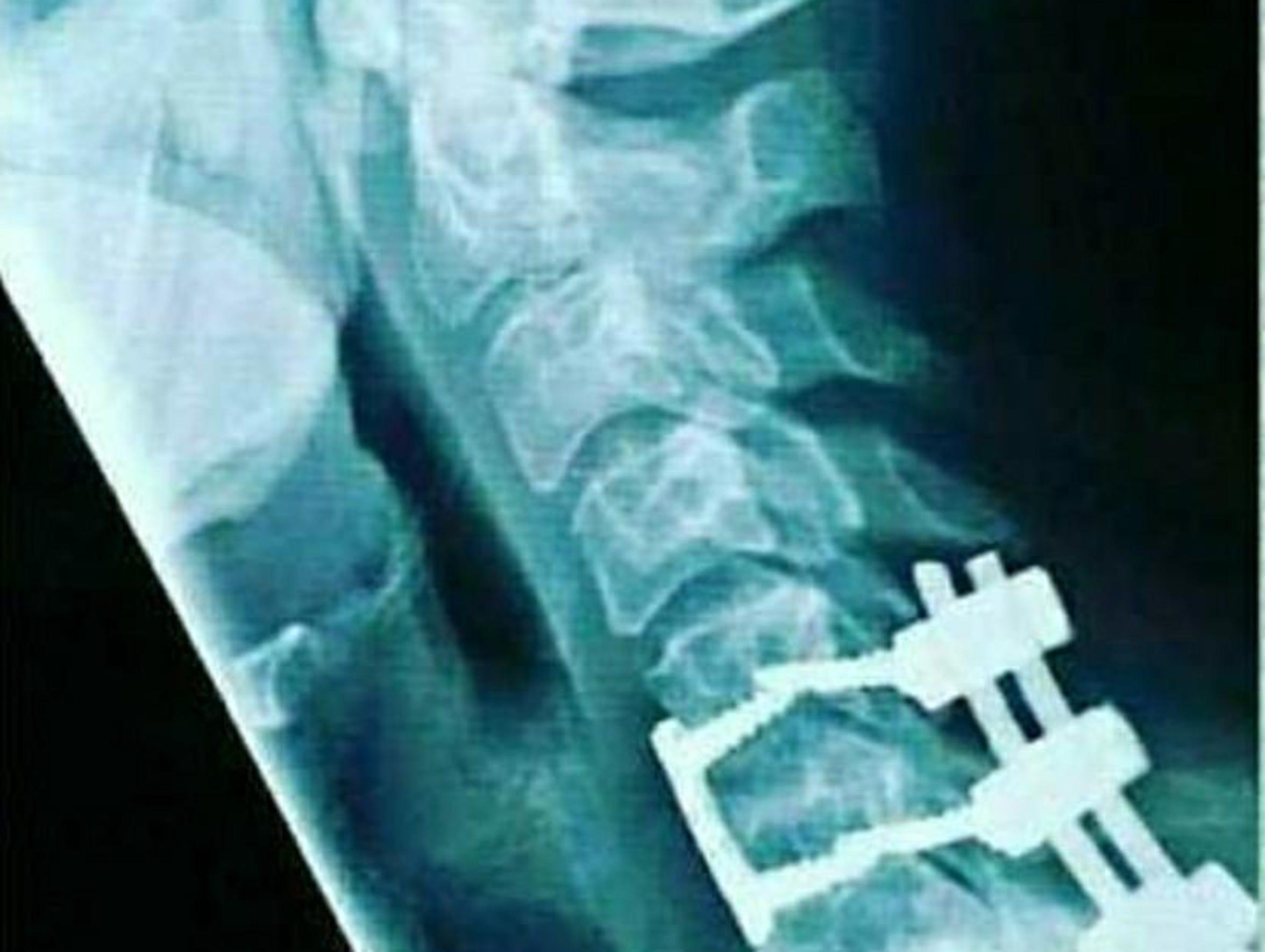 This is an X-Ray taken a few years ago of Teisha Doyle's spine. She had neck, pack and pelvis pain since a 2006 car accident and relies on medical marijuana to relieve pain and inflammation.