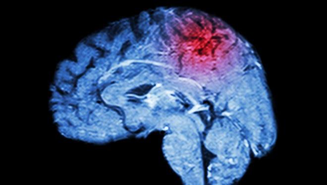 Magnetic Resonance Imaging, or MRI, of brain and stroke.