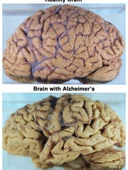 Above is a comparison of a healthy brain and a brain with Alzheimer's. Notice the shrinkage in the tissue due to atrophy.