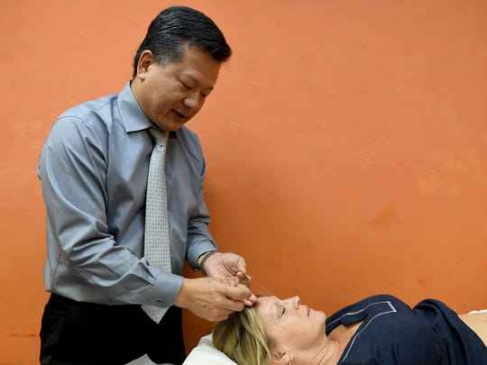 Dr. Orlando Ly performs cosmetic acupuncture for his patient Celia Hunt during a session Thursday, July 27.