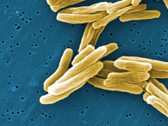 This 2006 image provided by the CDC shows the Mycobacterium tuberculosis (TB) bacteria in a high magnification scanning electron micrograph (SEM) image.  ORG XMIT: CPT113 [Via MerlinFTP Drop]