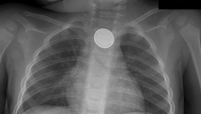 An X-ray of a button battery lodged in a child's throat.