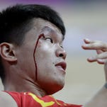ORG XMIT: OBKO124 Blood runs down the face of China's Zhu Fangyu after he collided with another player during a preliminary men's basketball game against Australia at the 2012 Summer Olympics, Thursday, Aug. 2, 2012, in London. (AP Photo/Eric Gay)