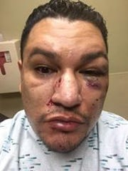 Josh Valdez posted photos of his injuries on Facebook after he allegedly was attacked at a birthday party early on July 31 at a residence on North Carlton Avenue in Farmington, according to an arrest warrant affidavit. Valdez says he was attacked because he is gay.