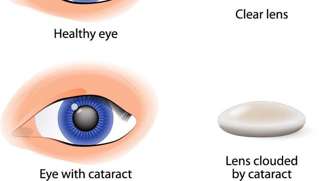 A contrast between a normal eye and one with cataracts.