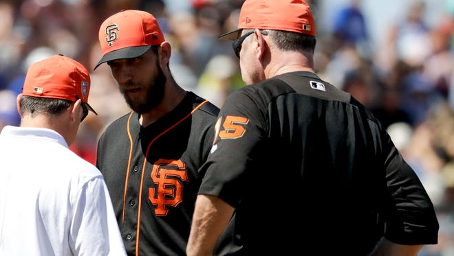 Bumgarner, center, is looked over by manager Bruce Bochy, right, and a trainer after getting hit by a comebacker.