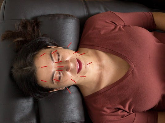 Modern Acupuncture offers cosmetic services